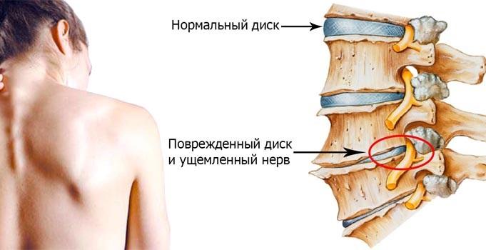 чем лечить остеохондроз шейного отдела позвоночника