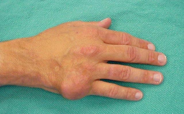 подагра суставов рук