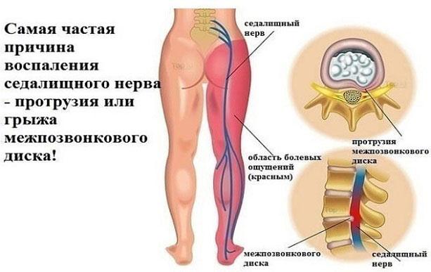 воспаление седалищного нерва признаки и лечение