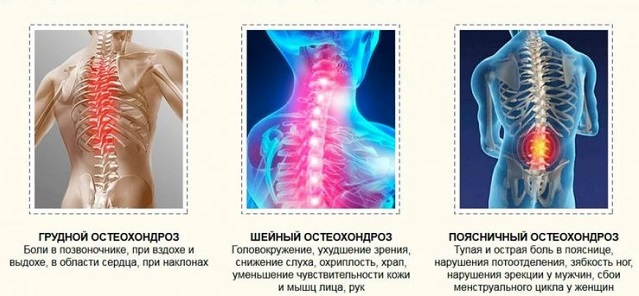 позвоночника и спины лечение