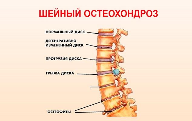 чем лечить шейный остеохондроз в домашних условиях